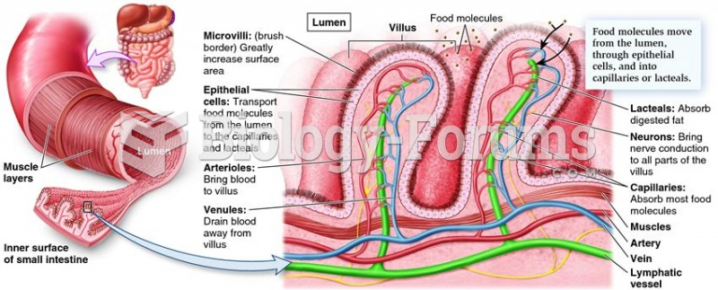 The specialized arrangement of tissues in the small intestine.