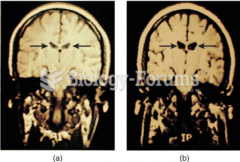 MRI Scans of the Brains of Twins Discordant for Schizophrenia