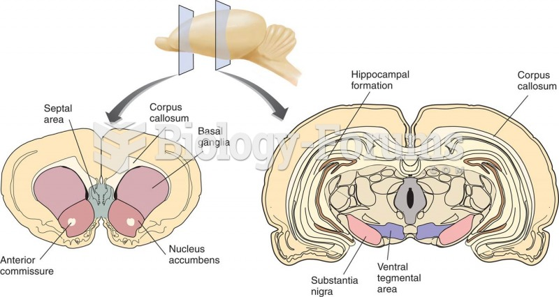 The Ventral Tegmental Area and the Nucleus Accumbens