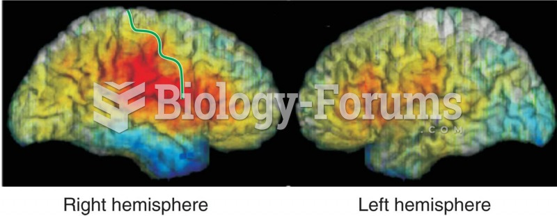 Brain Damage and Recognition of Facial Expressions of Emotion