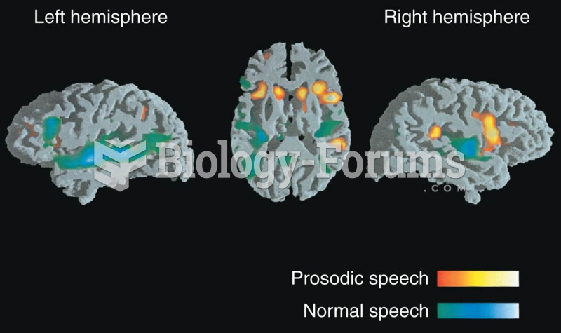 Listening to Normal Speech or Its Prosodic Components Functional MRI scans were made while subjects
