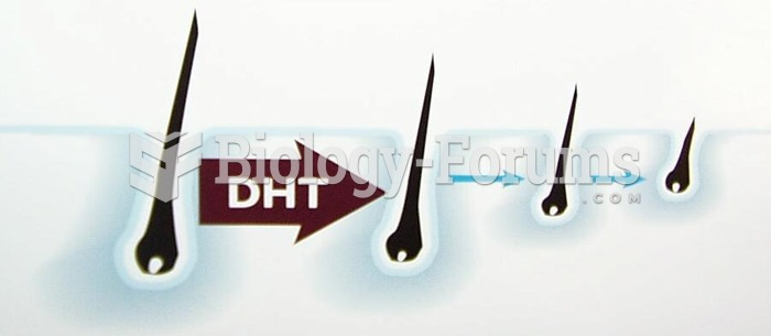 Hair loss due to DHT
