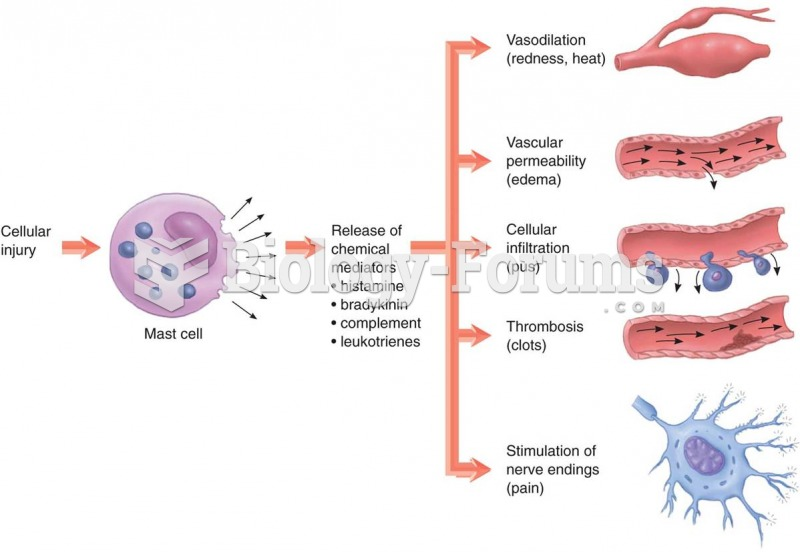 Steps in acute inflammation