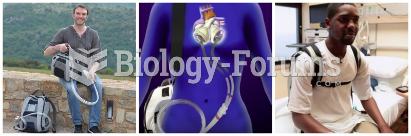 Artificial Heart Device