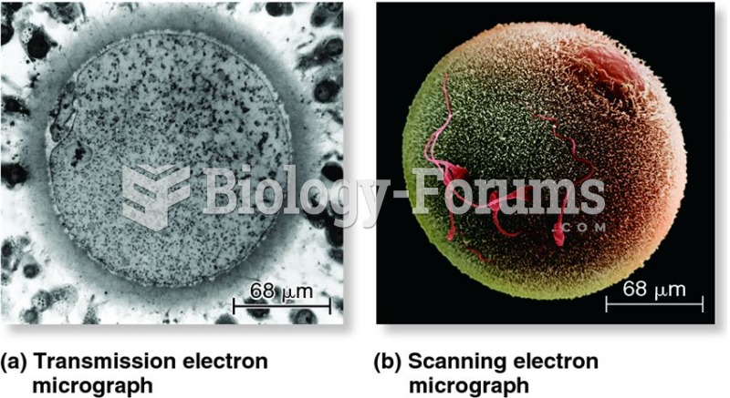 A comparison of transmission and scanning electron microscopy