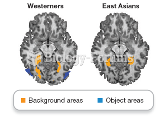 Brain activity varies by culture