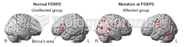 Brain Scans of KE Family