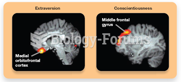 Measuring Personality and Brain Anatomy