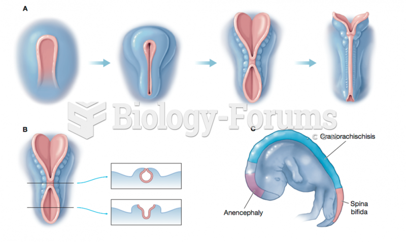 Formation of the Neural Tube  and Neural Tube Defects