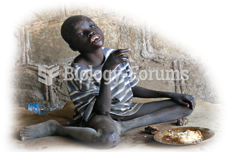 A child in an orphanage in Juba, Sudan. The treatment of this child is likely to affect his ability ...