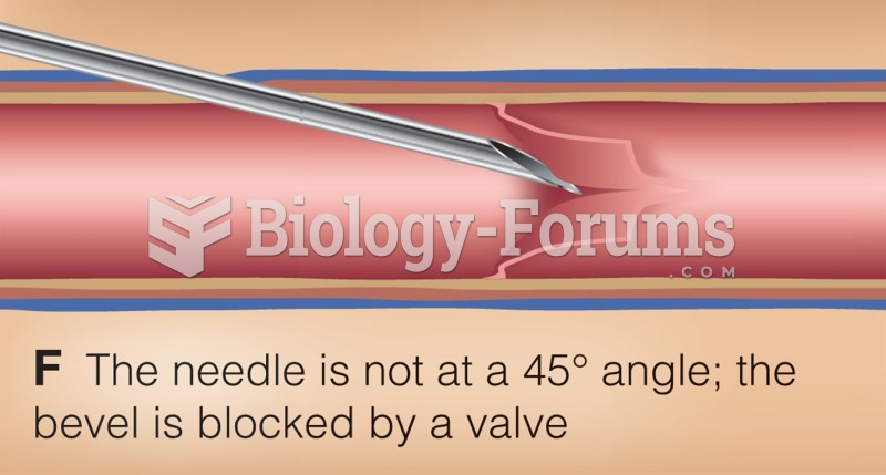 Common phlebotomy issues.
