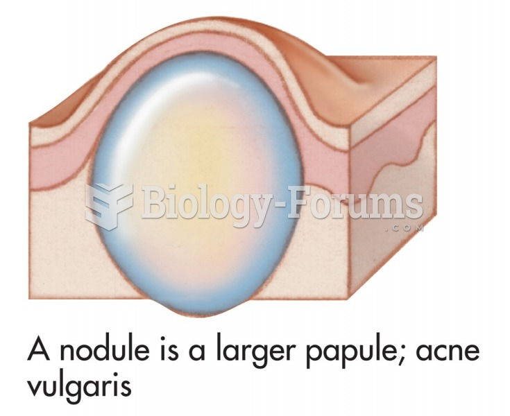 Common skin signs are often evidence of an illness or disorder. A nodule is a larger papule; acne ...