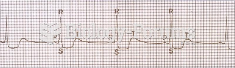 Examples of heart rhythms: sinus bradycardia.