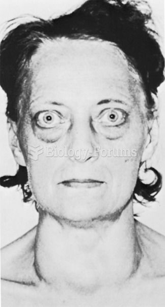 A patient with exophthalmos.