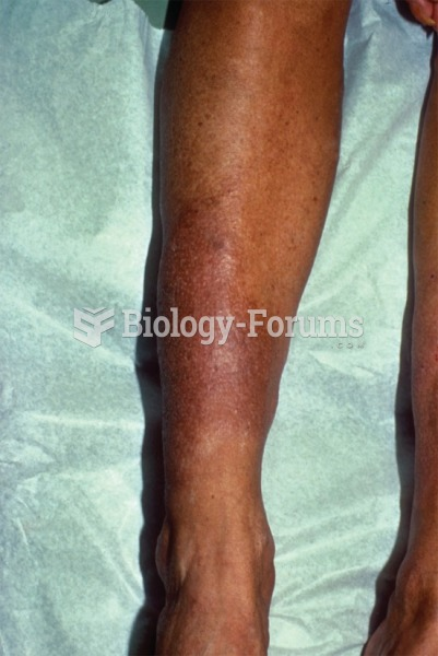 Dermatological changes with myxedema can occur behind the eyes or in the lower leg, as shown here.