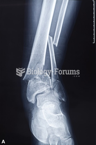 An X-ray of the complete fracture of a radius.