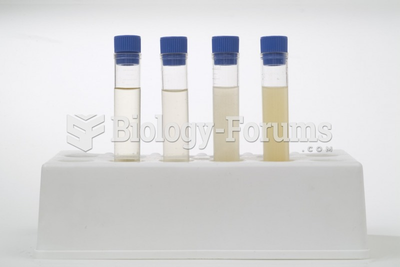 Evaluating the Physical Characteristics of Urine