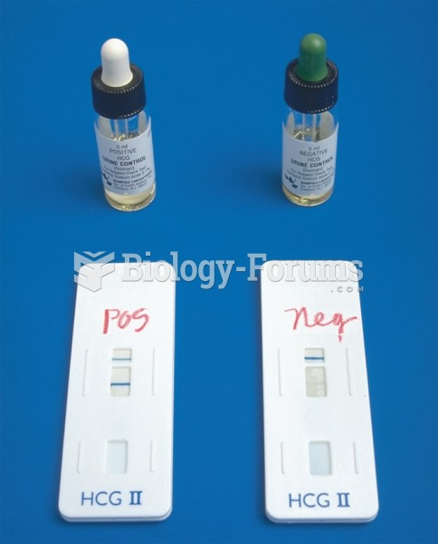 Performing a Urine Pregnancy Test Using the Enzyme Immunoassay Method
