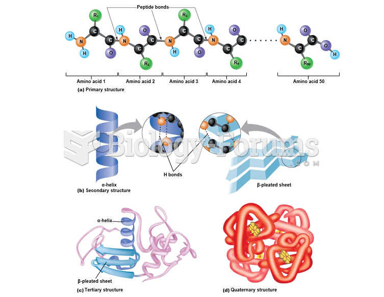 Levels of protein structure.