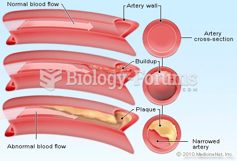 Blood flow in artery due to Cholesterol