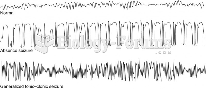 EEG recordings showing the differences between normal, absence seizure, and generalized tonic–clonic