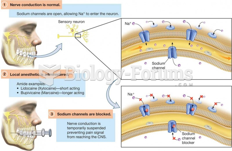 Mechanism of Action of Local Anesthetics