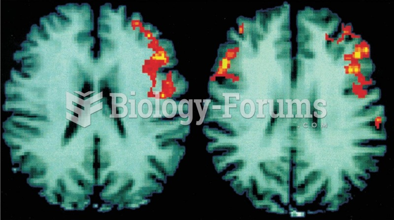 Functional MRI Scans These scans of human brains show localized average increases in neural activity