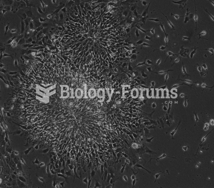 Human embryonic stem cells forming rosettes, a sign of neural differentiation