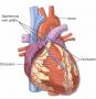 A coronary artery bypass graft (CABG) is a procedure to bypass a blocked coronary artery. The proced
