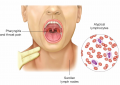 Mononucleosis is caused by the Epstein–Barr virus. Symptoms of the infectious disease are swollen pa