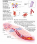 Sickle cell anemia. The clinical manifestations of sickle cell anemia result from pathologic changes