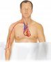 Cardiac catheterization. Insertion of a tube called a catheter through a blood vessel. In this examp