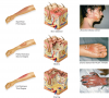 Comparison of the level of skin damage as a result of the three different degrees of burns.