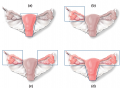 Alternative forms of surgeries involving the uterus, ovaries, and fallopian tubes. The solid lines i