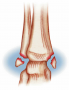 Pott's Occurs at the ankle and affects both bones of the lower leg (fibula and tibia)