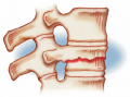 Compression Occurs in vertebrae subjected to extreme stresses, as when one falls and lands on his or