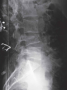 """Vertebral compression Fractures of the spine (vertebra) can cause severe """"band-like"""" pain that radia"""