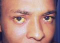 Jaundice. Photograph of an individual with liver disease, evidenced by the yellowing of the sclera o