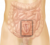 Intussusception. The condition is caused by an infolding of the small intestine, which often causes