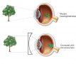 Myopia (nearsightedness). In the uncorrected top figure, the image comes into focus in front of the