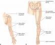 Common sites of amputation. (A) Upper extremities. (B) Lower extremities.  The surgeon determines th