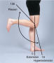 Range of Motion of the Knee Joint: Flexion, Extension, and Hyperextension