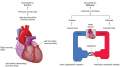 Myocardial Oxygen supply and demand