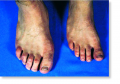 Acromegaly in one individual from a pair of identical twins.