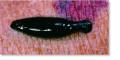 A leech, a member of the class Hirudinea.