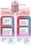 Regulation of heat exchange in the skin.