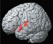 Effects of Therapy for Stuttering A functional MRI scan shows regions of the superior temporal lobe