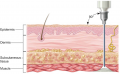 Intramuscular drug administration: (a) cross section of skin showing depth of needle insertion