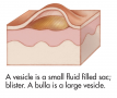 Common skin signs are often evidence of an illness or disorder. A vesicle is a small fluid filled ...