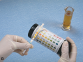 Testing the Chemical Characteristics of Urine with Reagent Strips